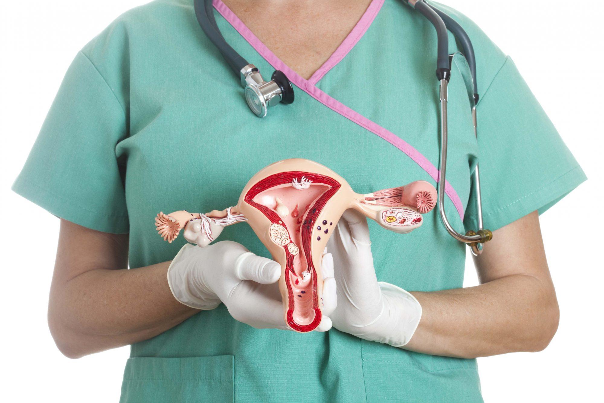 Pólipo endometrial: quando a cirurgia é indicada?